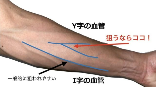 前腕に図を挿入し、血管を確保するためのポイントを解説している画像