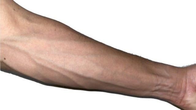 血管が出ている前腕